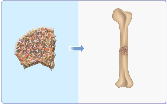 В Израиле мужчине вырастили новую ногу из его жировых клеток