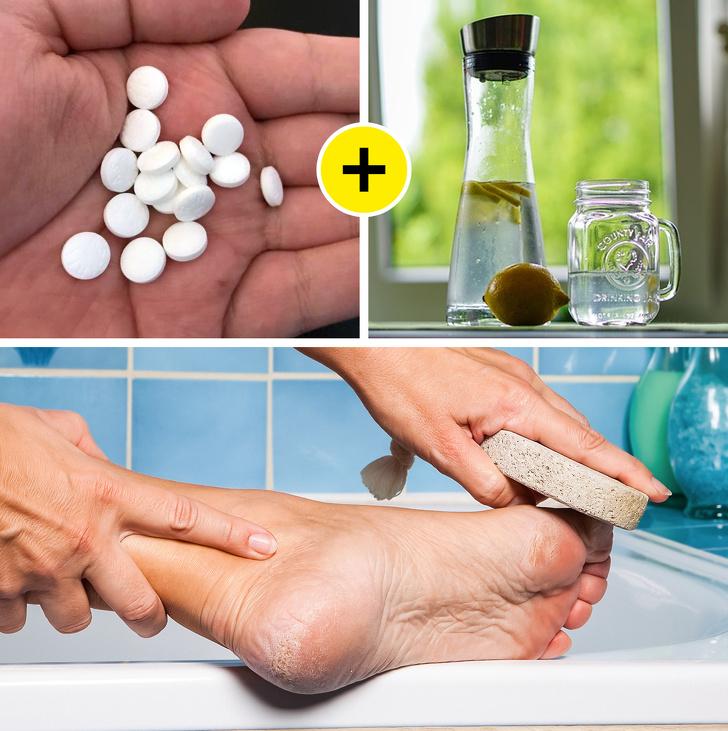 Свекровь рассказала, как с помощью крахмала и таблетки сделать кожу ног мягкой и избавиться от мозолей