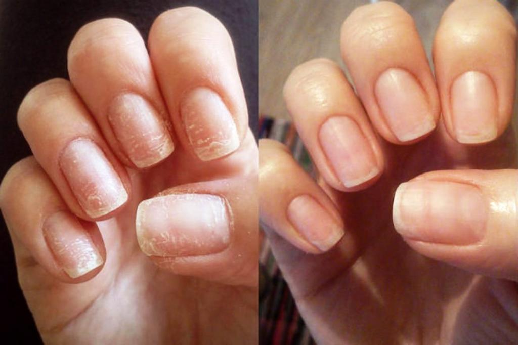Домашний маникюр: ошибки при ношении гель лака, от которых страдают ногти