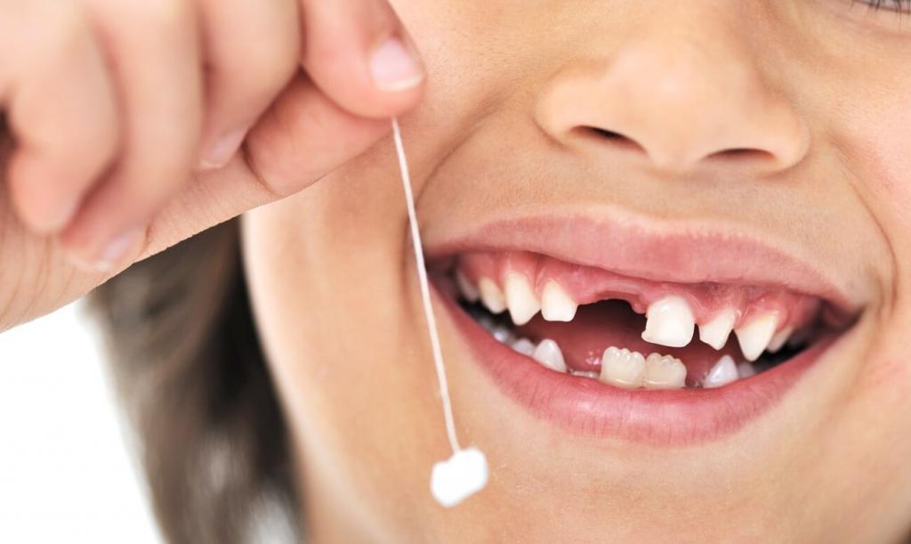 Эзотерики пояснили, к чему снится, что выпал зуб: это важный знак высших сил