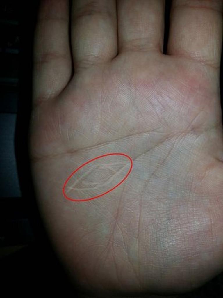 Ведьмин знак на руке. Признак, свидетельствующий о магических задатках и тяге к колдовству