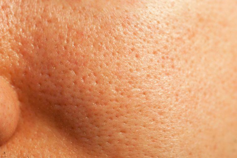 Они сужаются и расширяются: развеиваем мифы о порах на лице