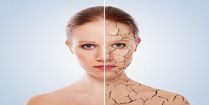Увлажняет кожу и защищает волосы: 8 уникальных свойств алоэ для красоты кожи и волос