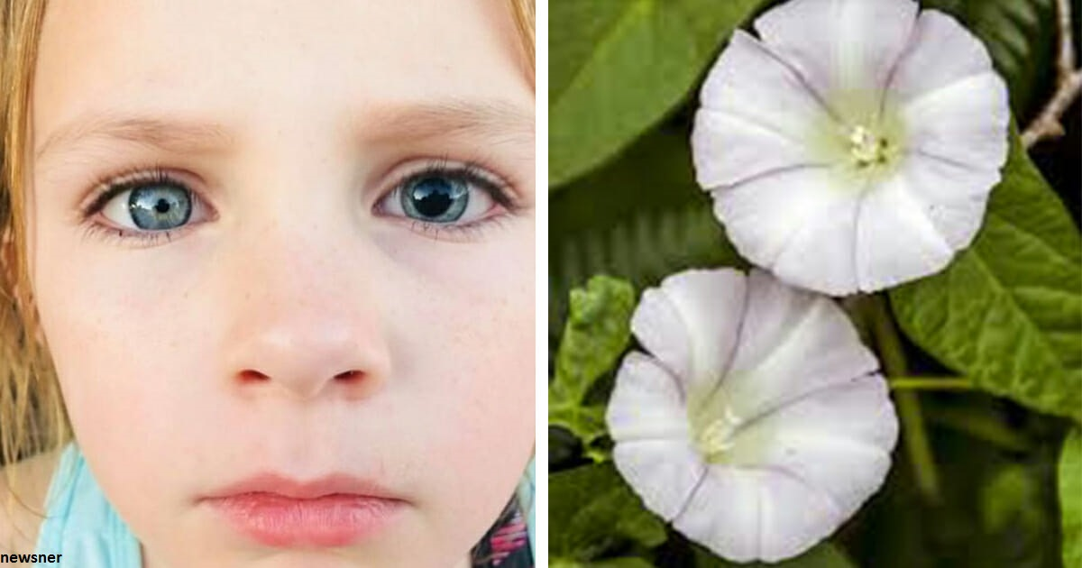 Девочка испортила себе глаз во время игры с этим цветком: не подпускайте к нему детей!