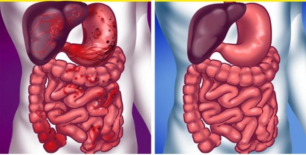 Мне очень нравится инжир: недавно узнала о его полезных свойствах не только для пищеварения