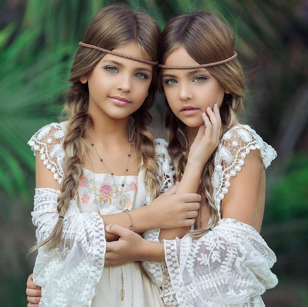 Очень красивые сестры близняшки продолжают завоевывать сердца: как девочки росли и менялись