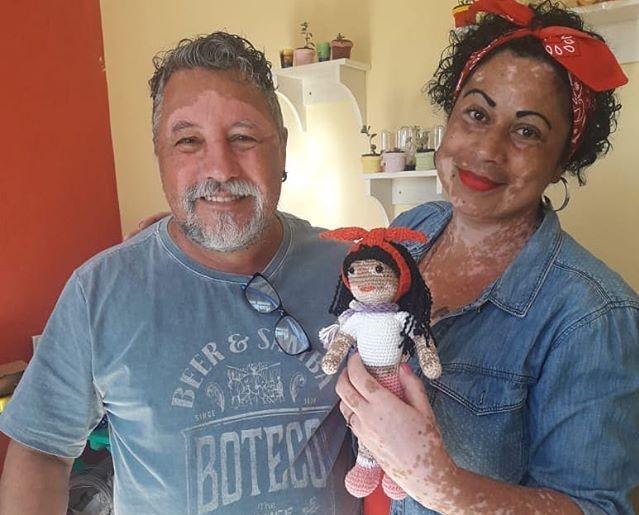Дедушка с витилиго делает такие же куклы, чтобы такие же дети больше любили себя