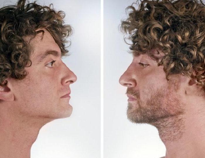 Пересадка волос и другие непопулярные ранее процедуры, которые сегодня становятся востребованными