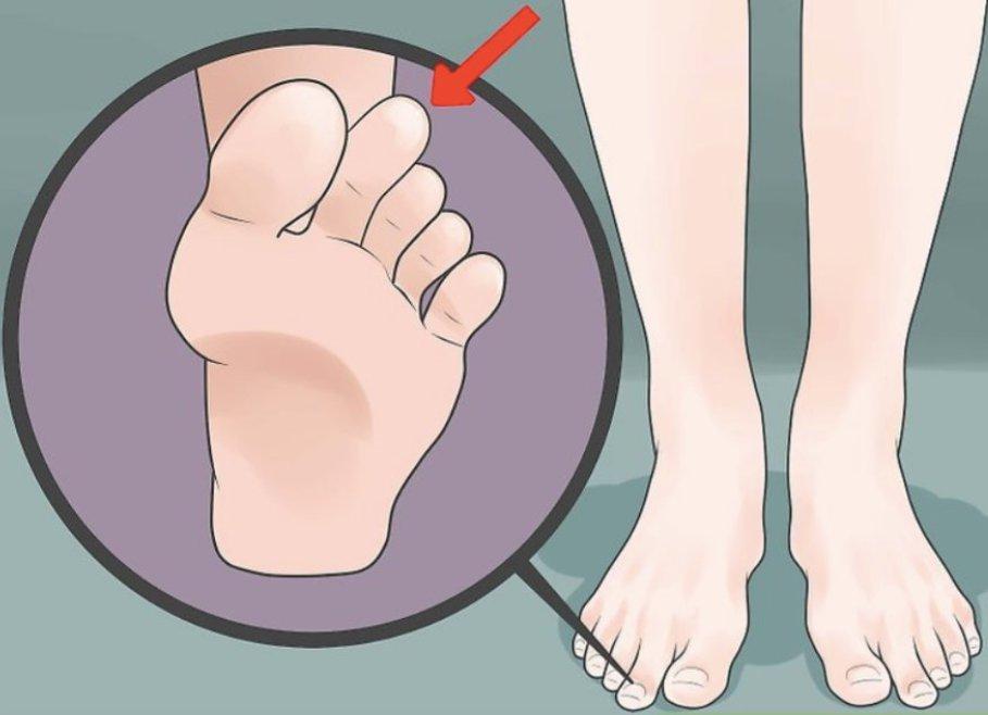 Указательный палец на ноге длиннее большого: это не просто дефект. О чем говорит такая особенность