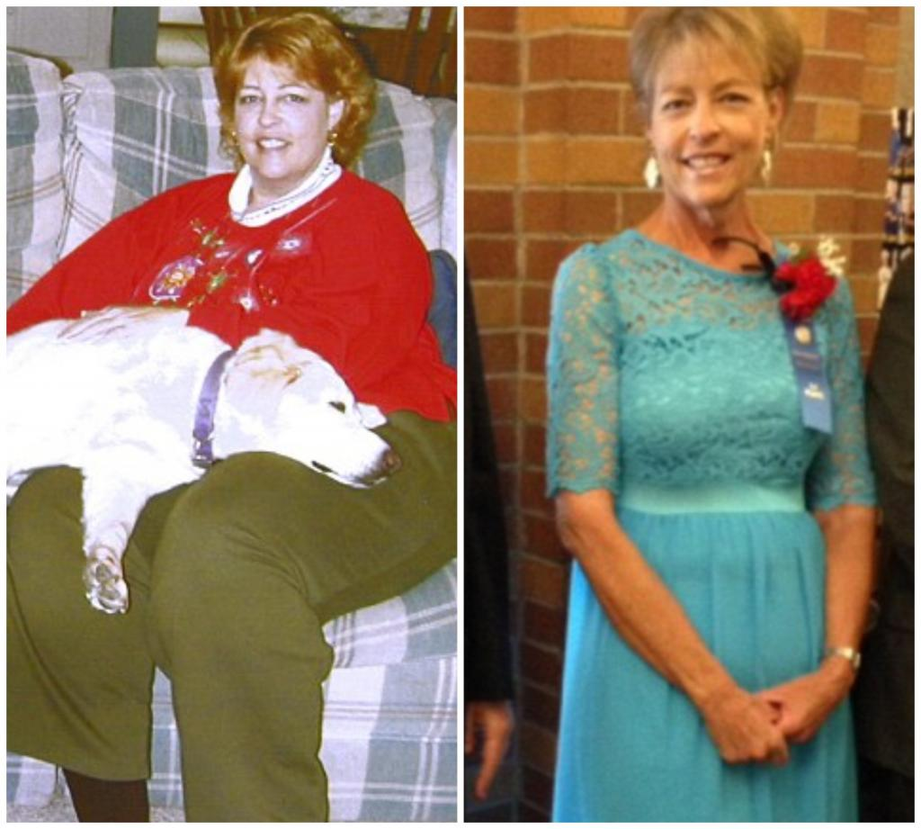 63 летняя женщина похудела на 110 килограмм, соблюдая всего 7 правил