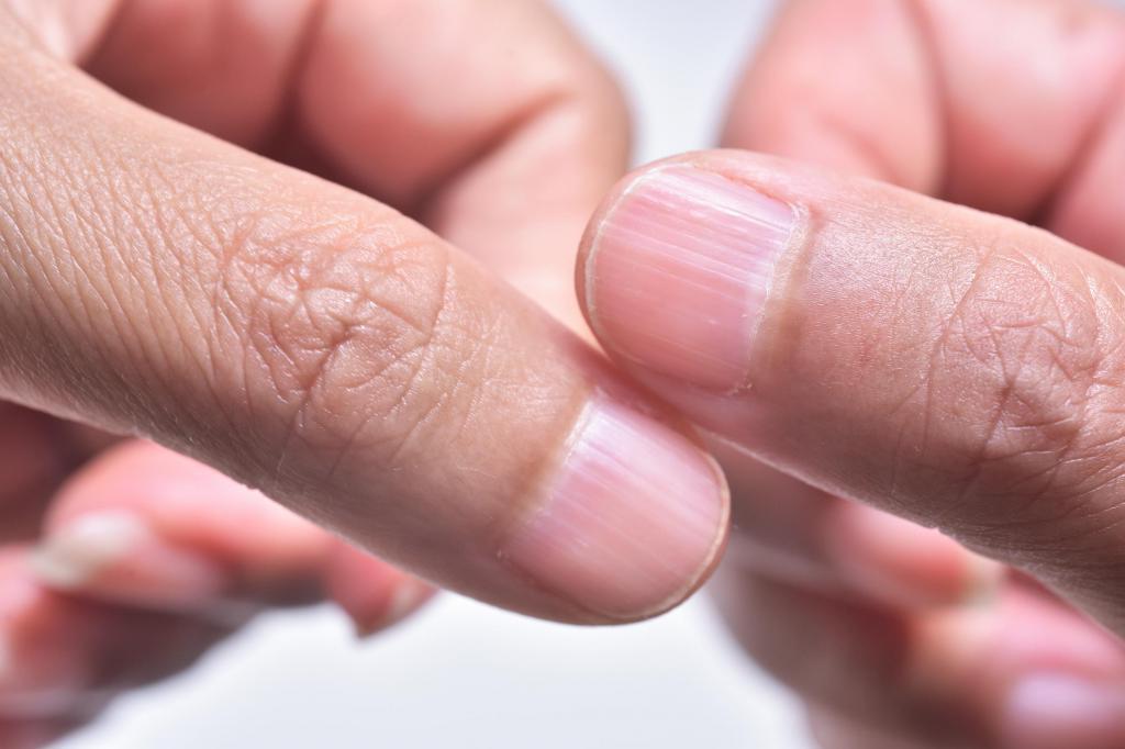 Белые пятна, сухость и ломкость: Как состояние ногтей расскажет о проблемах со здоровьем
