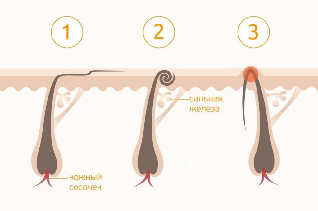 Отшелушить кожу, не двигаться против роста волос: правила бритья, о которых многие не знают