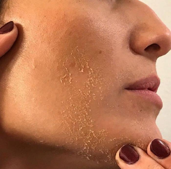 Надежные методы, которые помогут избавиться от расширенных пор: например, простая маска из глины