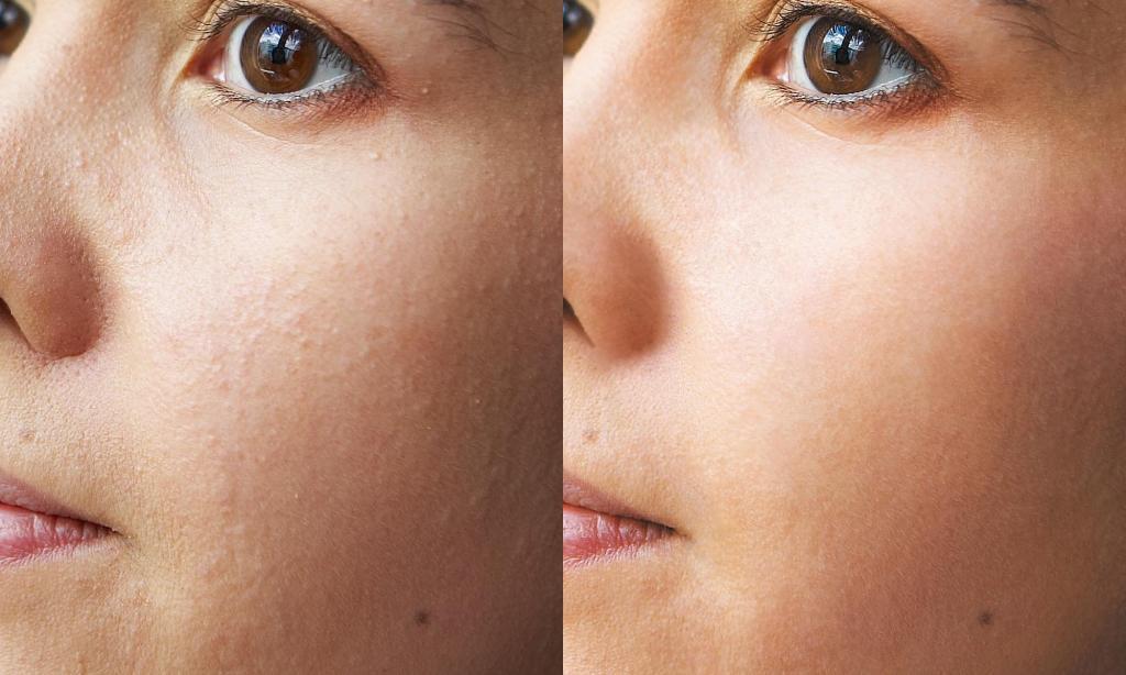 Отшелушивание кожи лица: 7 признаков того, что вы перестарались