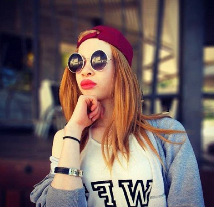 Еще недавно девушка-альбинос боялась смотреть на себя в зеркало. Сегодня ее телефон обрывают модельные агенства
