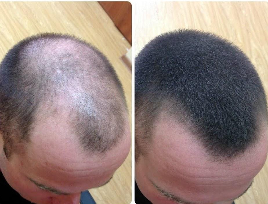 Парикмахер рассказала, как ускорить рост волос при помощи простейшей домашней маски всего за неделю. Рецепт