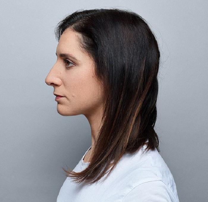 Большой нос — это прекрасно: автор небезызвестного флешмоба рассказала, что принять свою нестандартную внешность ей помог портрет