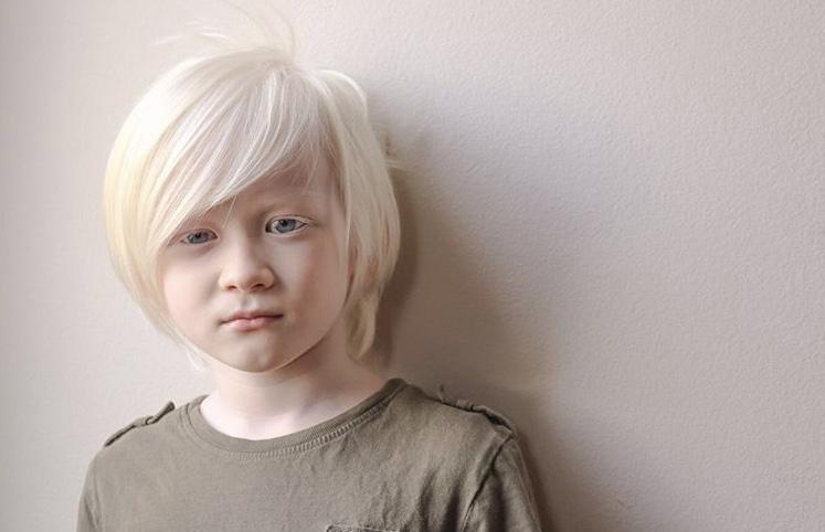 В феврале 2018 года Патрисия Уильямс второй раз стала мамой ребенка-альбиноса. Как братья выглядят сегодня