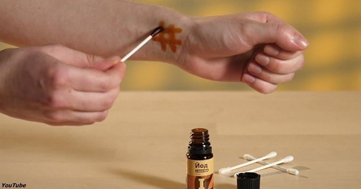 Йодовая сетка: нанесите на руку — и удивляйтесь целебным эффектам