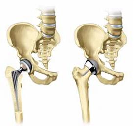 Замена тазобедренного сустава: причины, показания
