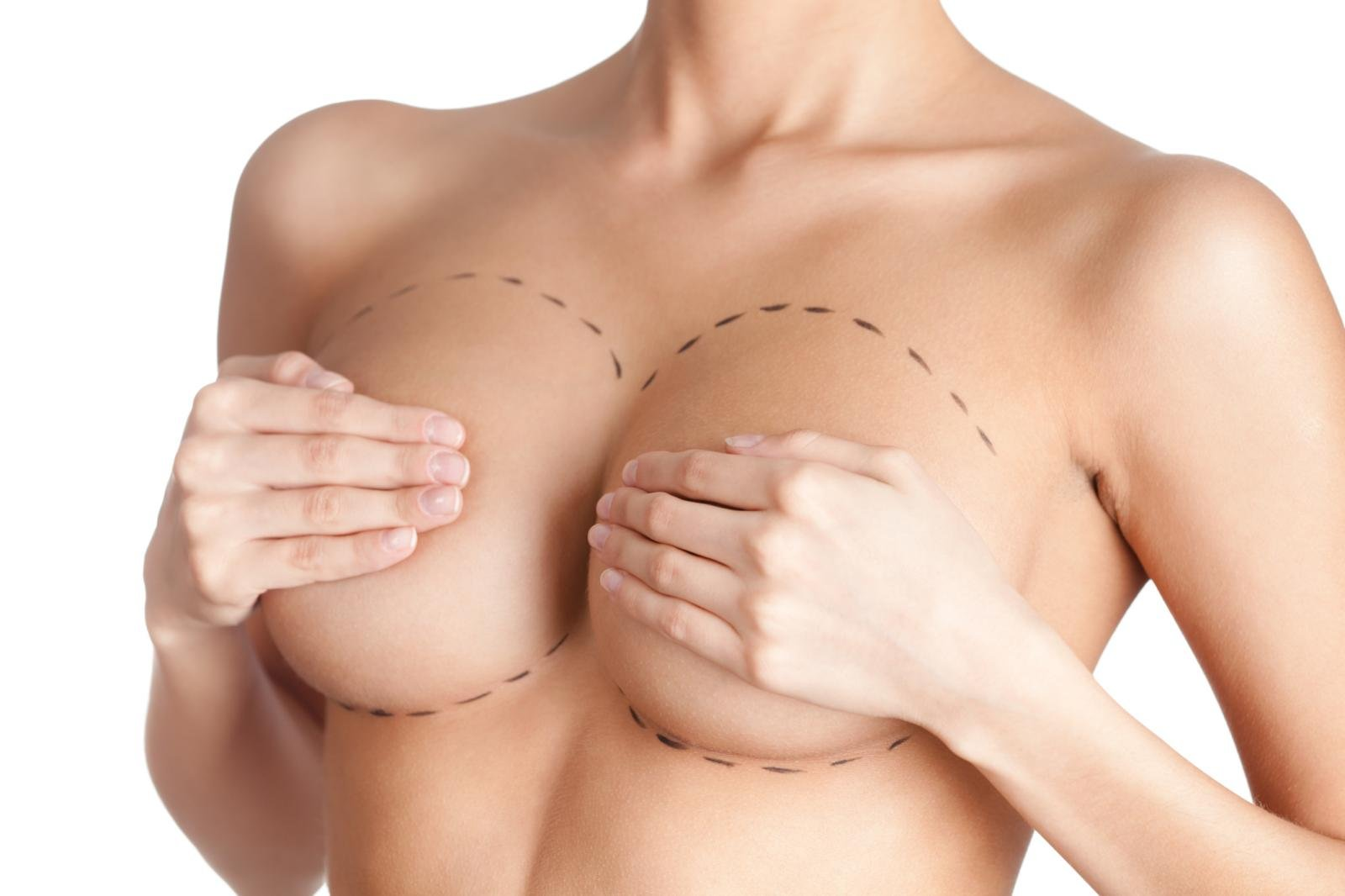 Маммопластика груди, особенности операции