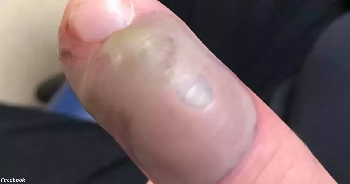 Женщина показала, почему категорически нельзя грызть ногти