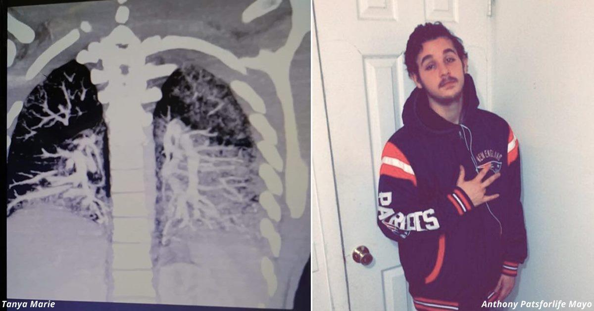 Ужасные сканы лёгких показывают, во что они превращаются из за вейпов