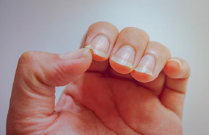 Если постучать ногтями по столу, то они будут расти быстрее: 5 главных советов от мастера по маникюру
