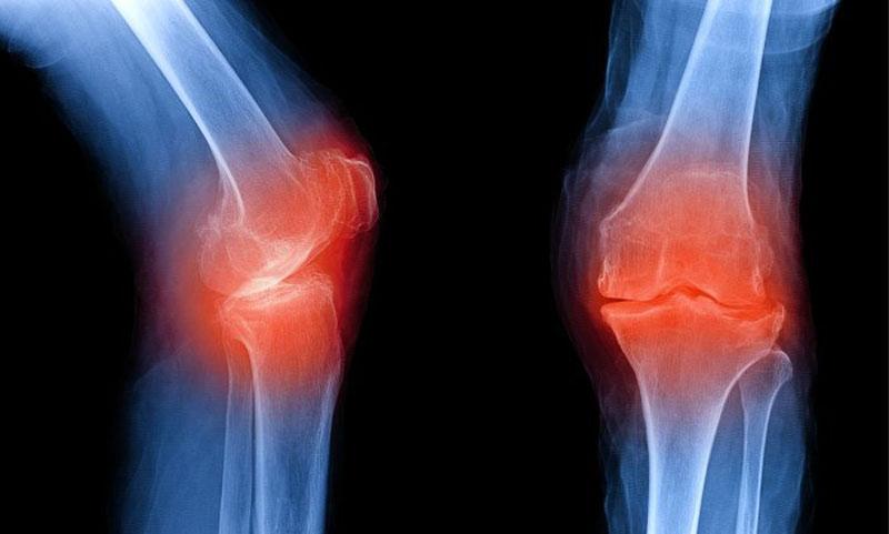 Хрящевая ткань в суставах может регенирироваться, считают ученые