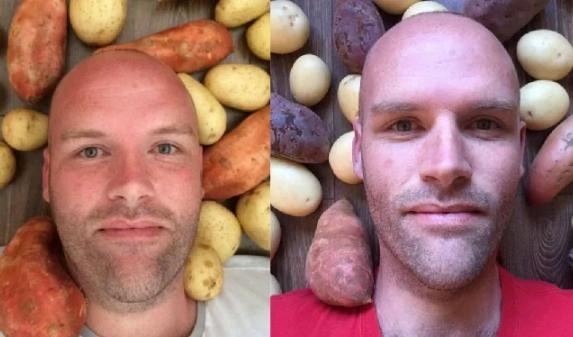 Как изменился мужчина, который год питался только картошкой. Мне одному кажется ,что он и сам стал похож на картофель?