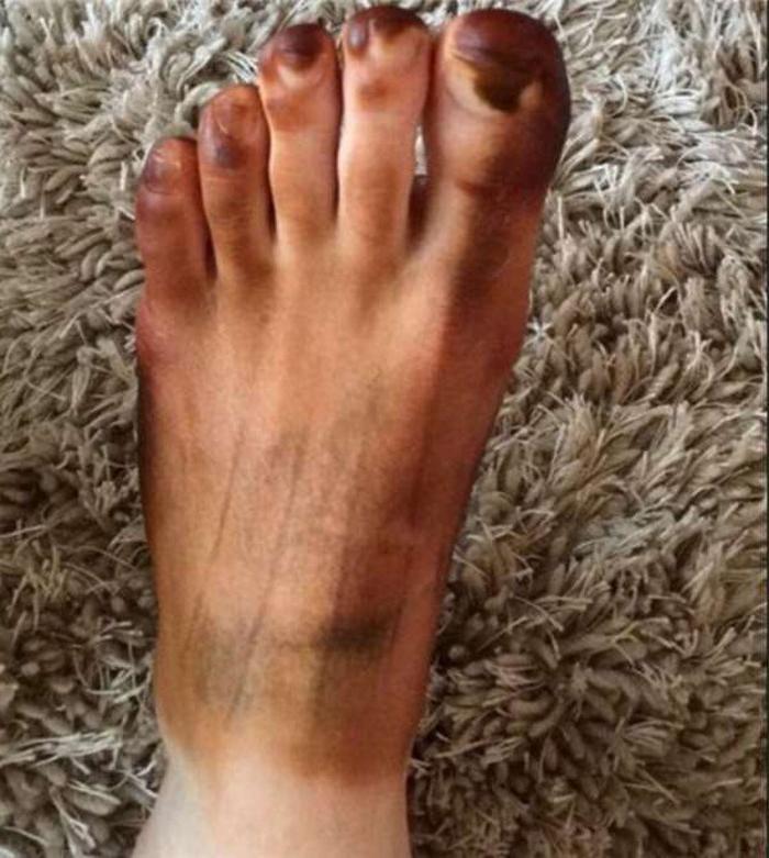 Увидев свою ногу, парень бросился искать симптомы в Сети. Дело оказалось в жене