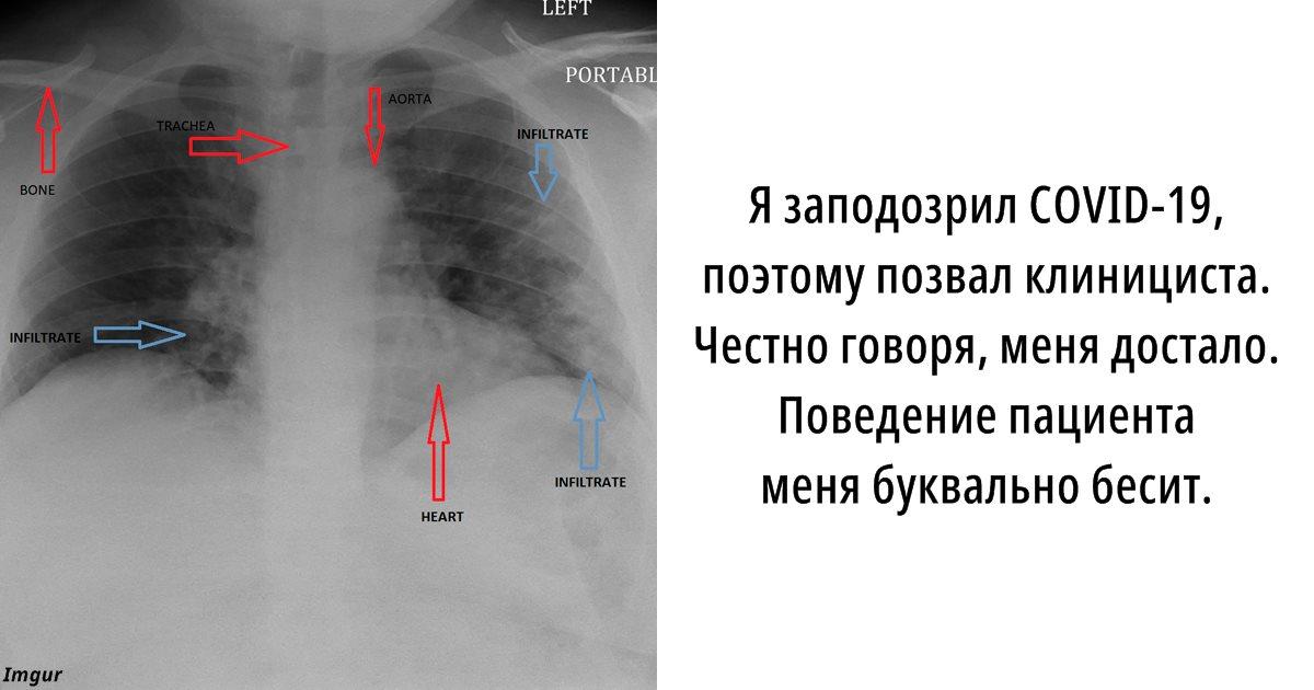 Злой радиолог объяснил, почему презирает людей, нарушающих карантин