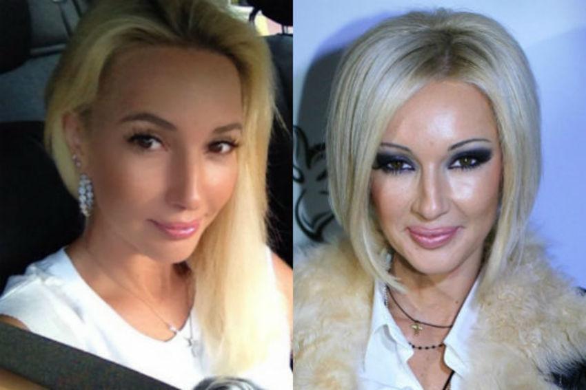 «Занялась своим здоровьем»: после операции по удалению имплантов телеведущая Лера Кудрявцева решила откачать гель из своих губ