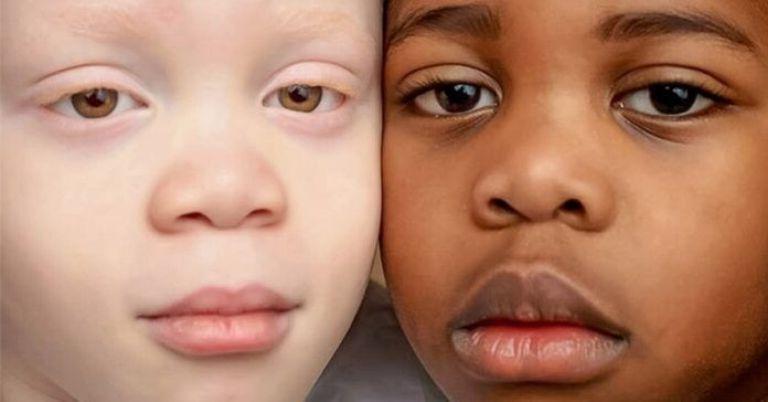 Близнецы с разным цветом кожи подросли. Как сегодня выглядят чернокожий братик и сестричка-белоснежка (новые фото)