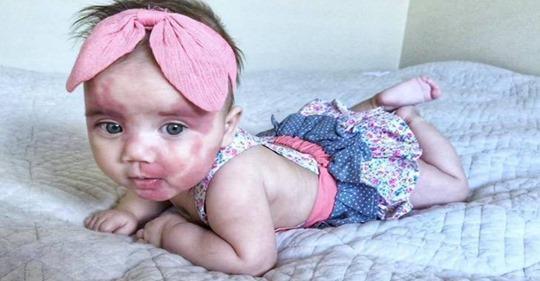Малышка с необычной внешностью получила много нехороших комментариев в социальной сети