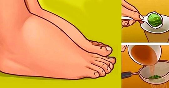 Самые лучшие домашние средства устранят отёки, боли, тяжесть в ногах, избавят от неприятного запаха и заживят трещинки на пятках!