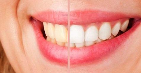 Отбеливание зубов 100% натуральным средством, которое также устранит зубной камень, микробы и желтые пятна!