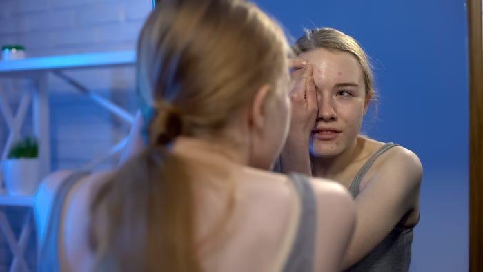 Обратите внимание, в каких ситуациях вы царапаете кожу, и в этот момент сожмите кулак. Как перестать выдавливать прыщи (советы экспертов)