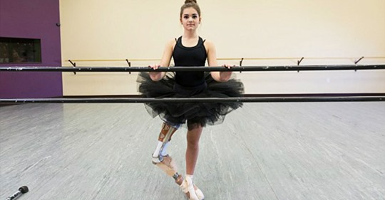 Потрясающая сила воли! Девушка с протезами стала профессиональной танцовщицей