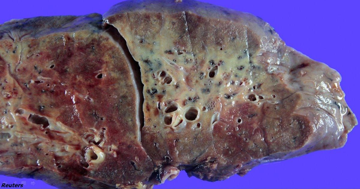 Так выглядит лёгкое, поражённое COVID-19