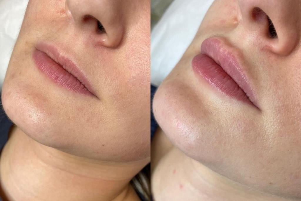Звездный косметолог Алена Куталия рассказала все о коррекции губ. Вот теперь думаю, делать или нет