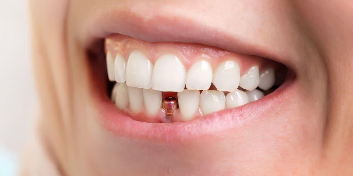 Имплантация после удаления зуба