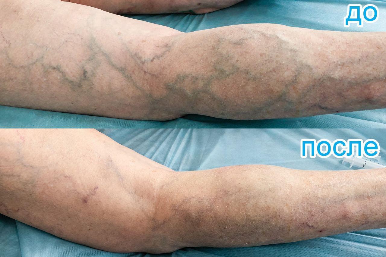 Схемы лечения варикоза ног на поздних стадиях