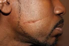 Как избавиться от шрамов и рубцов на лице – подробная инструкция