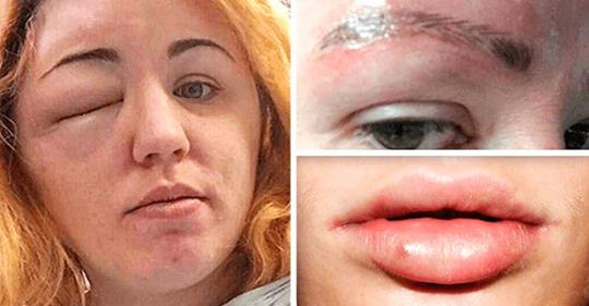 Страшные последствия обычных косметических процедур