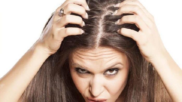 Если вижу на волосах перхоть, не бегу за специальными шампунями: избавляюсь от нее с помощью натуральных домашних ингредиентов