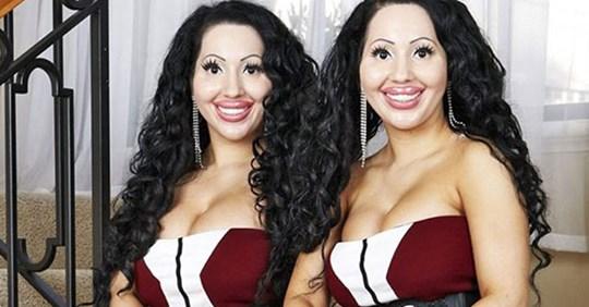 Эти близняшки потратили более 250 000USD на пластику, но они все равно недовольны своей внешностью