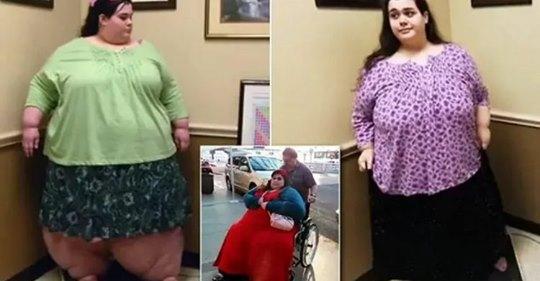 5 лет назад Эмбер удалось похудеть на 200 кг. Как девушка живет и выглядит сейчас