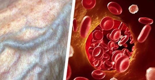 Улучшаем кровообращение, укрепляем здоровье. Без таблеток!