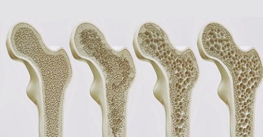 Лучшие продукты чтобы укрепить кости и предотвратить остеопороз!